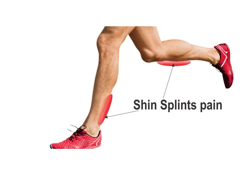 physiotherapy surrey for shin splints pain